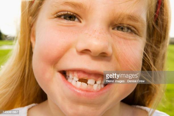 grinning girl with tooth missing - tooth fairy stock pictures, royalty-free photos & images
