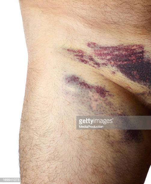 groin bruising after angiogram - bruise stock photos and pictures