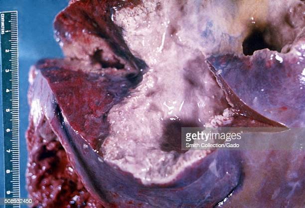 Gross pathology of liver containing amebic abscess Image courtesy CDC/Dr Mae Melvin Dr E West of Mobile AL 1962