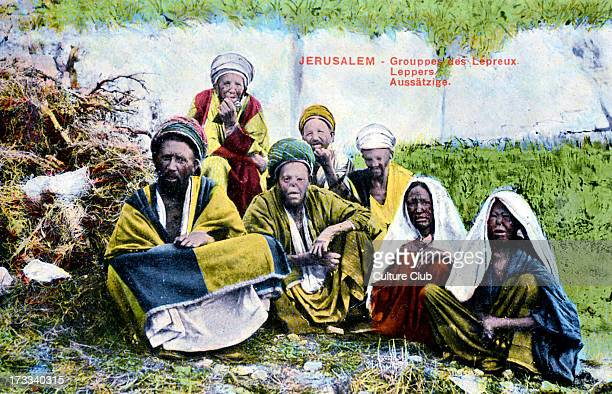 Group of lepers in jerusalem Postcard from early twentieth century An infectious disease referred to in the Bible Characterized by disfiguring skin...