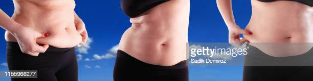 group of women showing fat section of their belly - abdominoplastia imagens e fotografias de stock