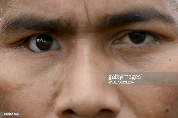 TOPSHOT FARC guerrilla fighter Sebastian who was wounded and lost an eye 19 years ago during a battle with the AUC poses for pictures during an...