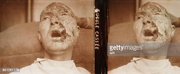 Gueule cassée survivant de la Première Guerre mondiale ayant subi une ou plusieurs blessures au combat et affecté par des séquelles physiques graves...