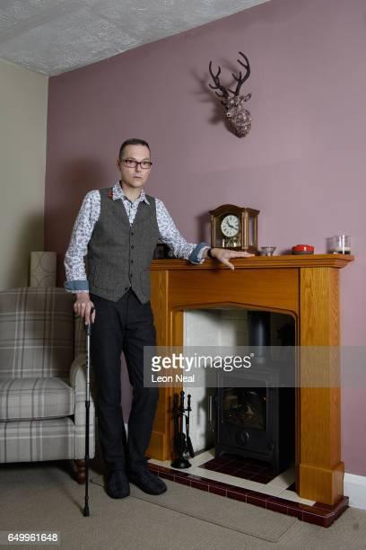 Gulf War veteran and former RAF medic Ian EwersLarose at home on March 3 2017 in Ipswich England Ian EwersLarose saw action in Operation Granby in...