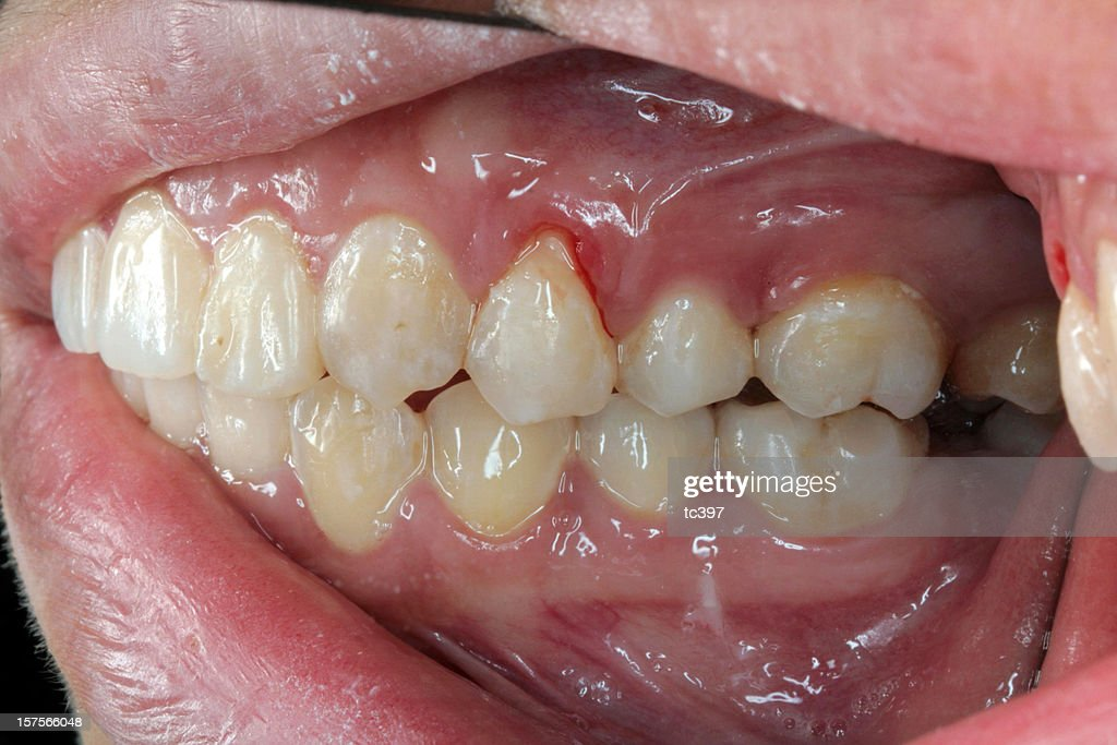 Gum Bleeding / Recession (Left Side View) : Stock Photo
