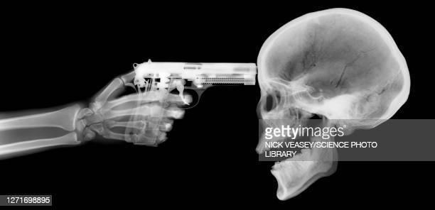 gun and skeleton, x-ray - execution stock pictures, royalty-free photos & images
