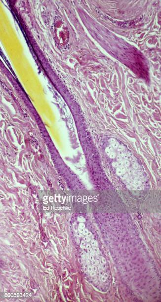 hair follicle, sebaceous glands and arrector pili muscle--human scalp, 25x - ed reschke photography photos et images de collection