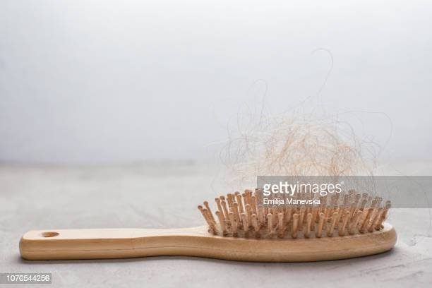 hair loss. hairbrush with hair stuck in it - cabeça raspada imagens e fotografias de stock