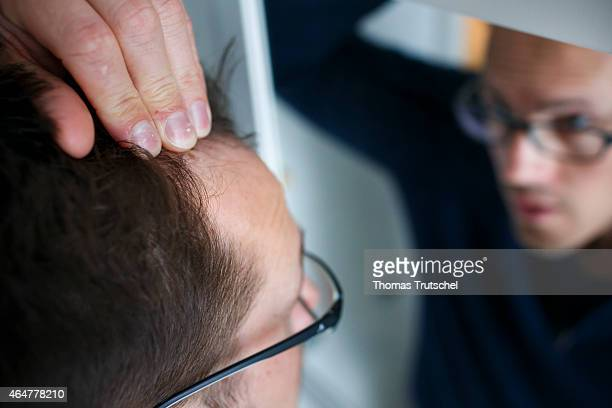 Hair loss posed scene of a man examining his receding hairline in a mirror on February 26 2015 in Berlin Germany