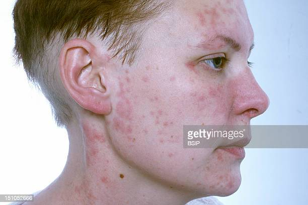 Hairdresser Allergic To Products Of Her Trade Cobalt Nickel And Cleaning Products She Also Suffers From Pelade