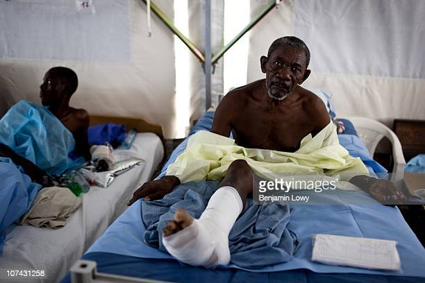 Haitian man who lost his left leg and severely injured his right, lies in a medical tent in the Port au Prince General Hospital on January 31 2010....