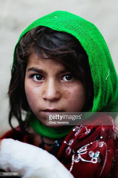 Halawasha an Afghan Pashtun girl holds her badly burned young sister Shokria bandanged forearm after medics n the US Army's 101st Airborne Division...