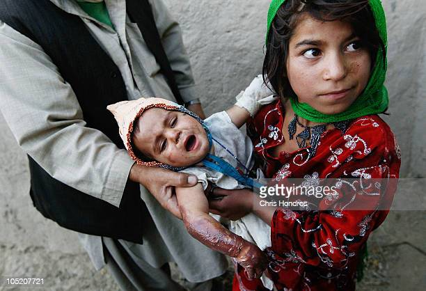 Halawasha an Afghan Pashtun girl holds her badly burned young sister Shokria to show nearby soldiers in the US Army's 101st Airborne Division October...