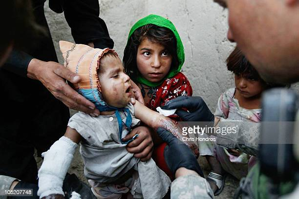 Halawasha an Afghan Pashtun girl holds her badly burned young sister Shokria while a soldier in the US Army's 101st Airborne Division cleans her...