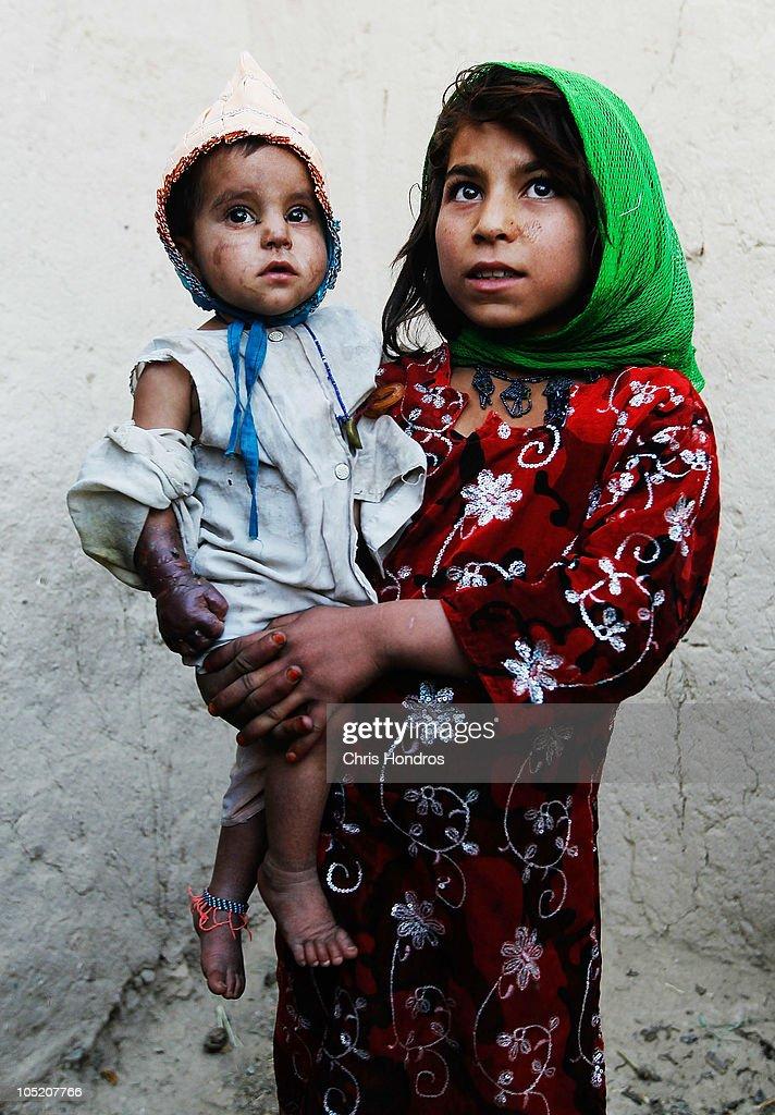 U.S. Army 101st Airborne Treats Badly Burned Infant Near Kandahar : News Photo