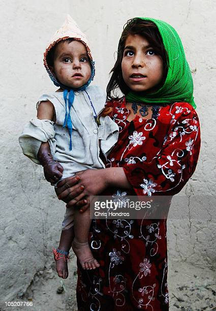 Halawasha an Afghan Pashtun girl holds her badly burned young sister Shokria as soldiers in the US Army's 101st Airborne Division pass by October 12...