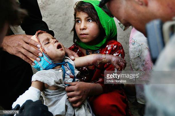 Halawasha an Afghan Pashtun girl shows her badly burned young sister Shokria to nearby soldiers in the US Army's 101st Airborne Division October 12...