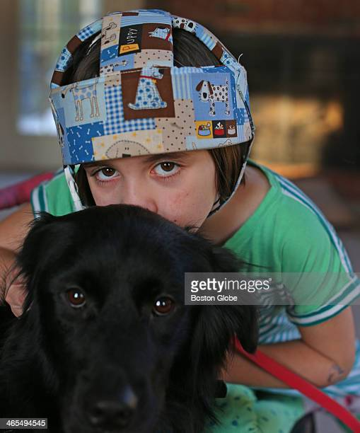 Haley Osborn who has severe epilepsy with her service dog Sofie A handful of studies suggest cannabidiol or CBD an ingredient in marijuana might cut...