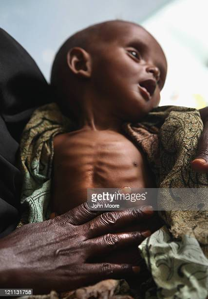 Halima Hassan holds her severely malnourished son Abdulrahman Abshir 7 months at the Banadir hospital on August 14 2011 in Mogadishu Somalia The US...