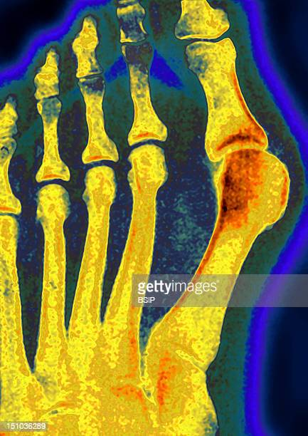 Hallux Valgus Deviation Towards The Outside Of The Big Toe X Ray Of The Right Foot In Front View