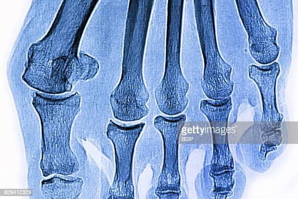 Hallux valgus on the big toe seen on an xray of the right foot