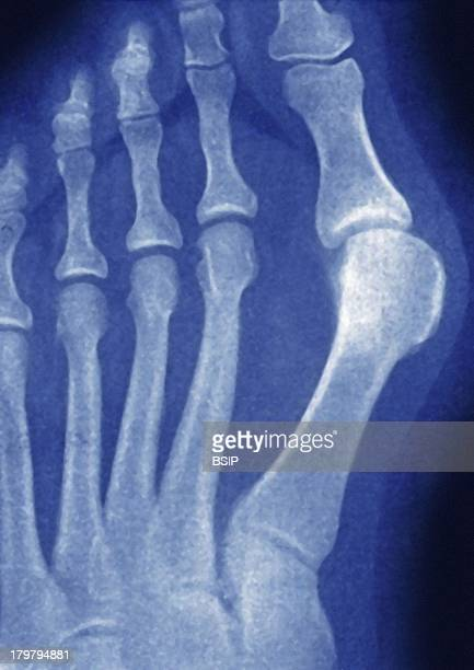 Hallux Valgus XRay Deviation Towards The Outside Of The Big Toe Right Foot Front View