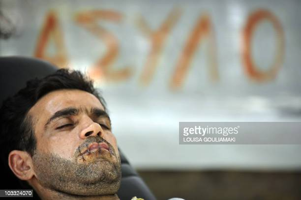 Hamed an Iranian political refugee who has had his mouth sewn shut lies in a makeshift encampment in front of the UNHCR offices in Athens on August 8...