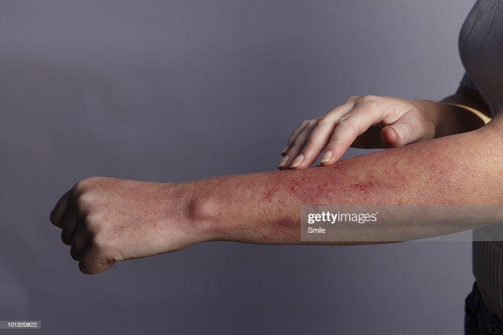 Hand feeling rash on arm : Stock Photo