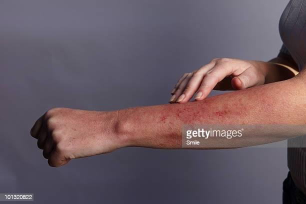 hand feeling rash on arm - malattia della pelle foto e immagini stock