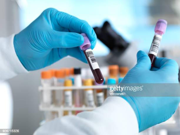 Hand holding blood sample in laboratory