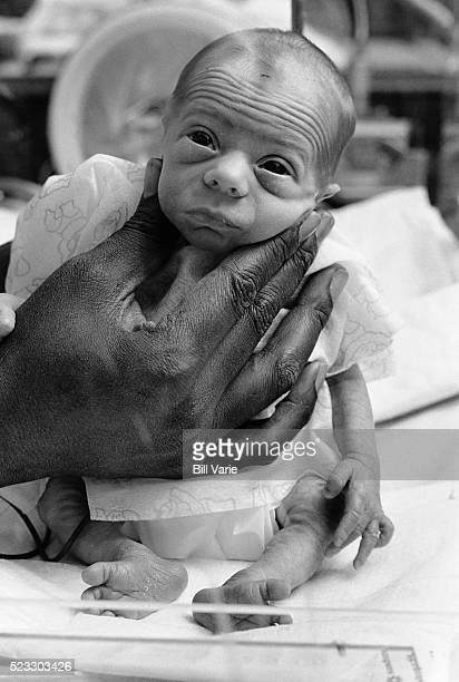 Hand Holding Premature Baby