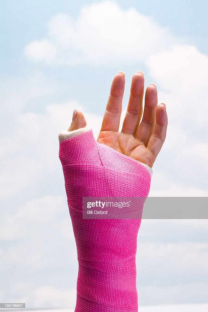 Hand in Cast : Stock Photo