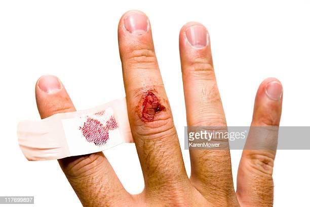 hand injury - cut on finger stock photos and pictures