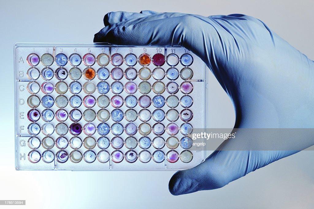Hand with a microplate assay : Stock Photo