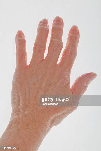 hand with arthritis - osteoarthritis stock photos and pictures
