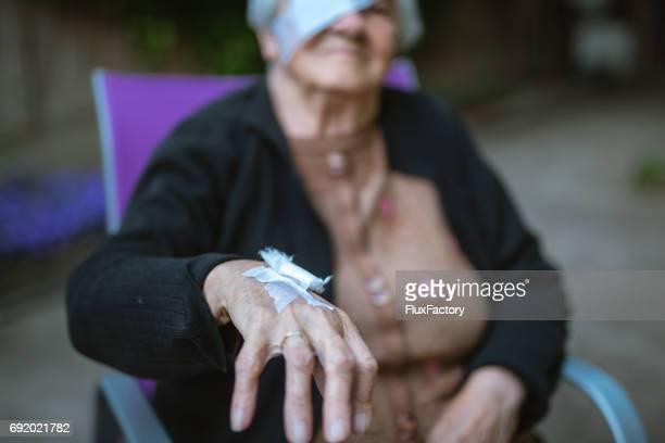 hand mit bandage vom betrieb - felsspitze stock-fotos und bilder