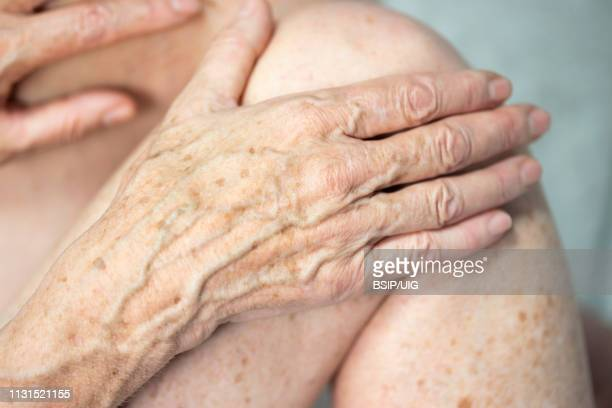 hand with spots of old age - lentigo stock pictures, royalty-free photos & images
