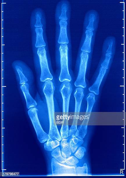 Hand XRay Healthy Right Hand Dorsal View