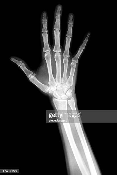 Una radiografia della mano