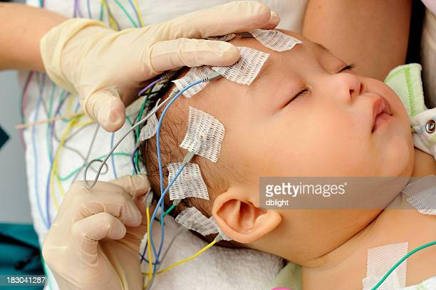 hands applying electrodes to baby for electroencephalography - eeg stock pictures, royalty-free photos & images