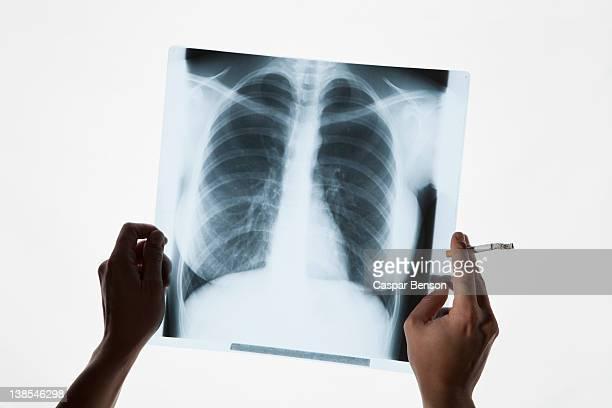 hands holding a chest x-ray and a cigarette, close-up - raucher lunge stock-fotos und bilder