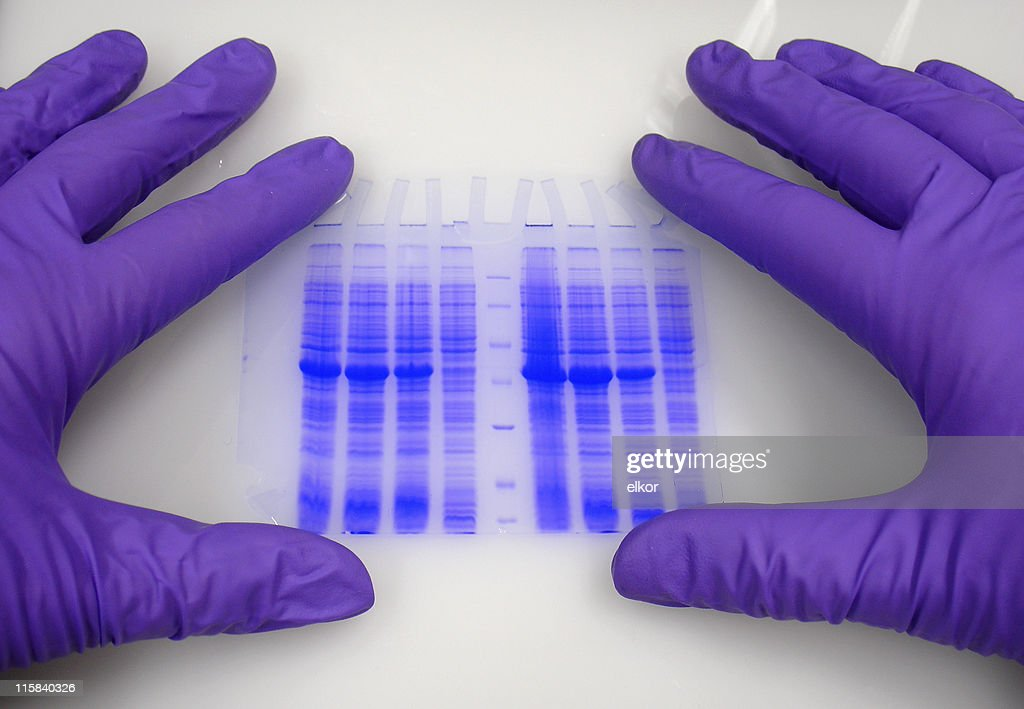 Hands in protective gloves hold blue-stained electrophoresis gel. : Stock Photo