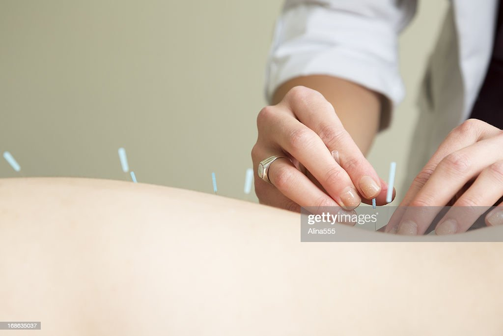 Hands of acupuncture therapist inserting a needle : Stock Photo