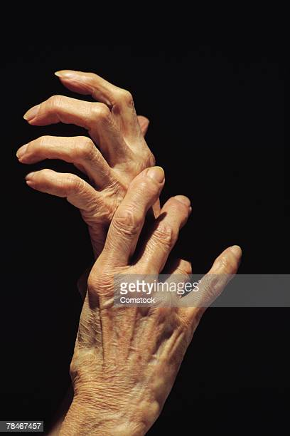 hands of elderly person - underweight stock pictures, royalty-free photos & images