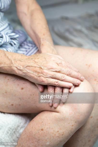 hands with spots of old age - lentigo fotografías e imágenes de stock