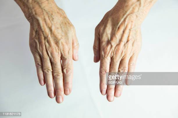 hands with spots of old age - lentigo stock pictures, royalty-free photos & images