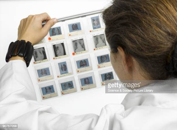 A hanging file of transparencies created by the pathologist Dr P C Elmes to accompany his lectures on lung diseases The slides include photographs of...