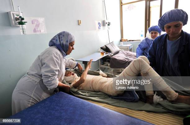 Hanife screams in pain as she has her bandages changes for the first time since undergoing skin graft surgery in the burn center of the Herat...