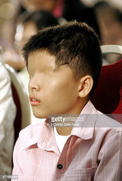 Vietnam's 14 years old alleged Agent Orange victim Le Van O from Southern province of Kien Giang attends an international conference on the effects...