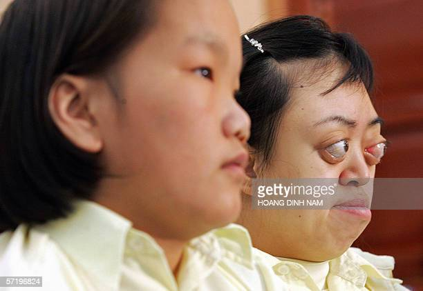 Vietnam's alleged Agent Orange victim Van Long and Nguyen Thi Bich Phuong attend an international conference on the effects of the Vietnam War...